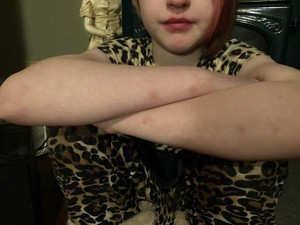 Lilli, a fifth grader in Salem-Keizer Public Schools, folds her arms to show small bruises the family said came from school staff members restraining her.